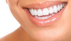 Za lepši izgled vaših zuba