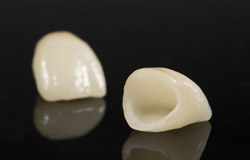 Non-metal crowns are suitable for the front teeth